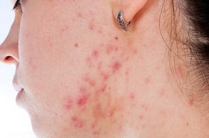 Acne Scars. Types of Scars and how to treat them. Pulse Dermatology & Laser Cape Town.