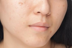 Boxcar Scars. Types of Scars and how to treat them. Pulse Dermatology & Laser Cape Town.