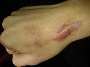 Keloid Scars. Types of Scars and how to treat them. Pulse Dermatology & Laser Cape Town.