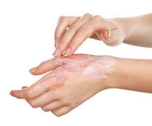 Scar Contractures. Types of Scars and how to treat them. Pulse Dermatology & Laser Cape Town