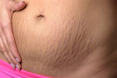Stretch Marks. Types of Scars and how to treat them. Pulse Dermatology & Laser Cape Town.