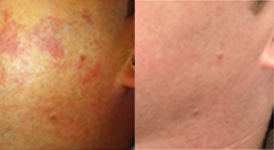 IPL Skin Rejuvenation before and after