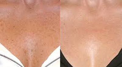 Pigmentation removal - IPL Skin Rejuvenation before and after