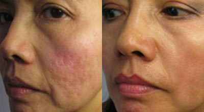 Micro-Needling scar reduction before and after