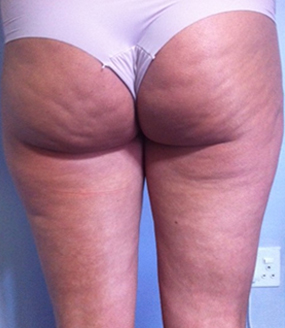 Before NIR Laser Skin Tightening for cellulite reduction at Pulse Dermatology & Laser.