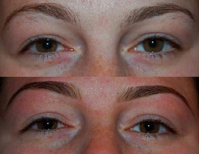 Before and After - Elecrolysis Eyebrows