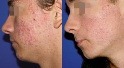 Before & after Acnelan treatment. Pulse Dermatology & Laser Cape Town.