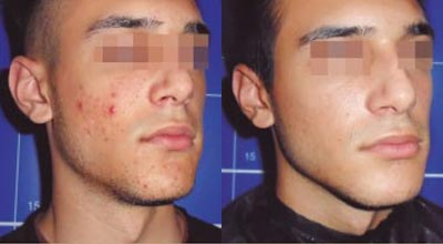 Before and after Acnelan facial peel