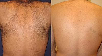 Back Laser Hair Removal Before & After. Pulse Dermatology & Laser Cape Town.