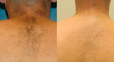 Laser Hair Removal Back before and after. Available at Pulse Dermatology & Laser