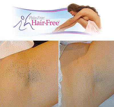 Laser hair removal Cape Town before and after
