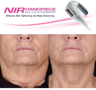 Skin Tightening Kenridge Cape Town Northern Suburbs