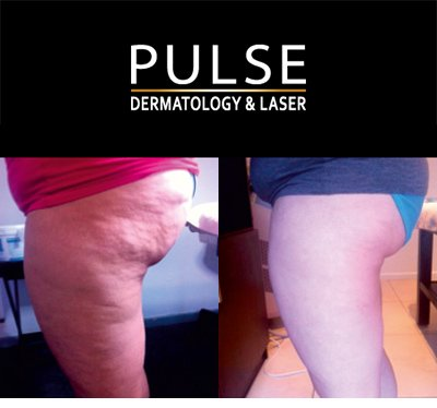 Before and After cellulite reduction at Pulse