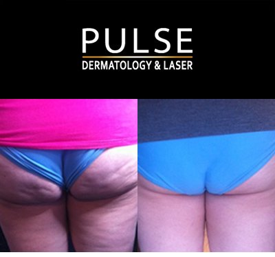 Cellulite Reduction Cape Town Kenridge before ad after