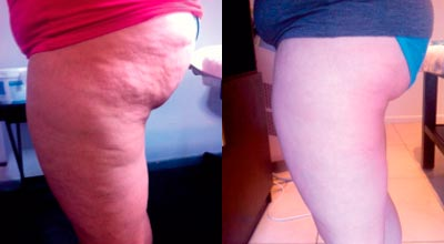NIR Skkin Tightening Cape Town before and after