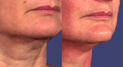 Skin Tightening Cape Town before and after