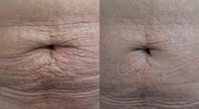 Skin Tightening Cape Town Kenrige Before and After